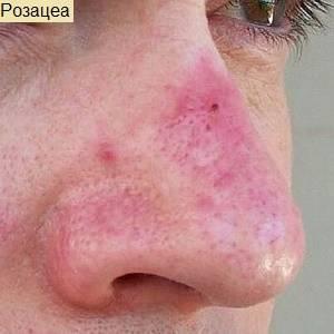 почему краснеет нос
