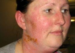 Аллергия на силикон