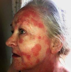 Аллергия на косметику для лица