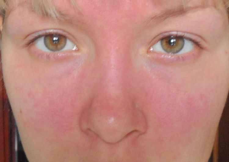Аллергия на лице у взрослого. Что с этим делать? Как замаскировать аллергию?