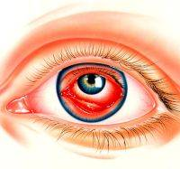 Воспаление глаз симптомы и лечение