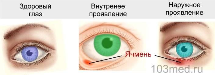 Виды ячменя на глазу, глазного ячменя