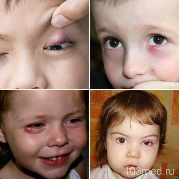 Глазной ячмень у детей