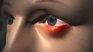 Модель воспаления ячменя в 3d