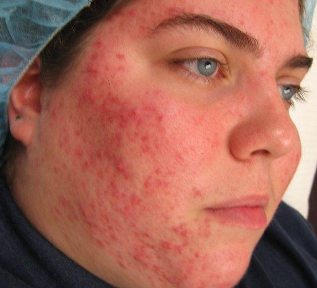 Клещ периодически выходит на поверхность, захватывает бактерии, которые находились на поверхности кожи, и заносит их в волосяные мешочки