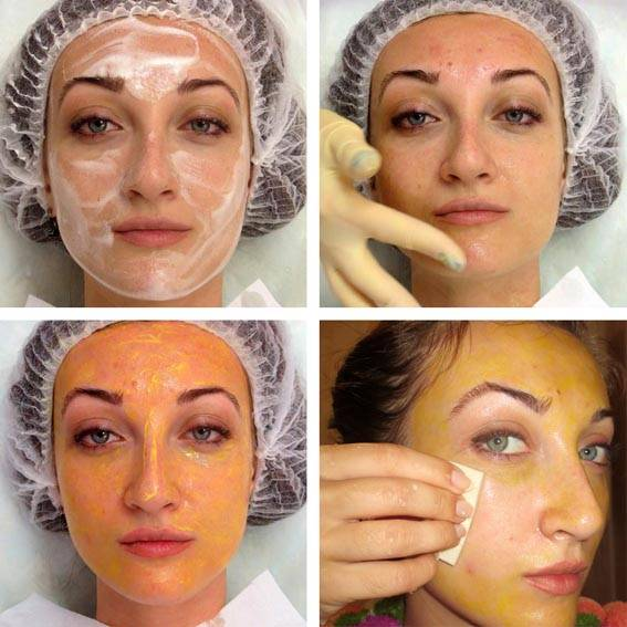 Польза и вред пилинга для лица: химический, на фруктовых кислотах, гликолевый, аппаратный, ретиноловый, Джесснера, янтарная кислота, с кальцием