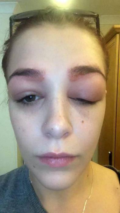 опухли глаза аллергия что делать