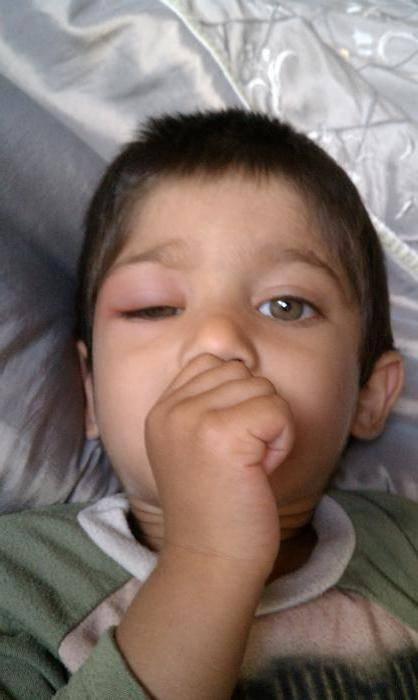 аллергия опухли глаза у ребенка что делать