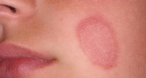 Красные пятна на лице, дерматоз