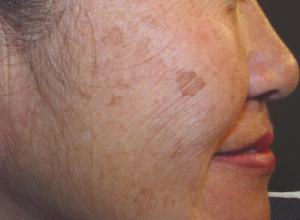 возрастные пятна на лице