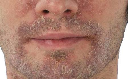 Шелушится кожа на теле пятнами