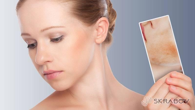 Красные сухие пятна на лице: причины и лечение 7-4-1