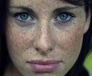 веснушки на лице фото