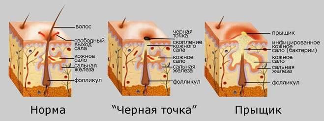 Сыпь на лице и зуд