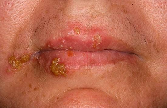 На фотографии показан классический пример простуды на губах, вызываемой вирусом HSV-1 (реже HSV-2).