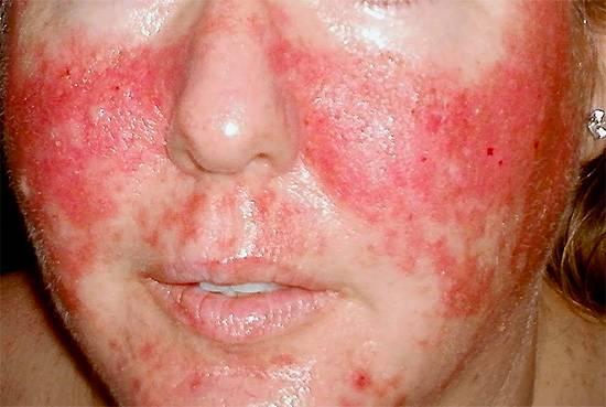 Опоясывающий лишай на лице вызывается вирусом Herpes zoster.