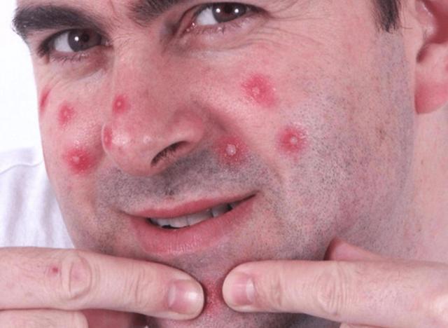 Ведь, если выдавливать или удалять другим образом не созревшее высыпание, то могут в дальнейшем появиться шрамы и рубцы