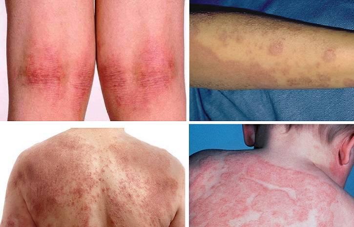 Сыпь при атопическом дерматите