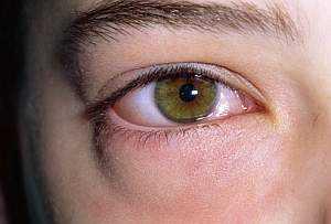 Мешки, отеки под глазами: причины, как избавиться от отеков, Азбука здоровья