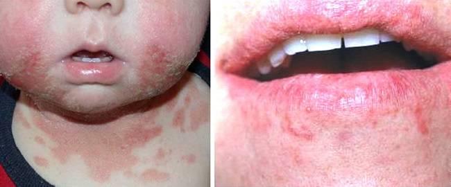 Аллергический контактный дерматит на подбородке взрослого и ребенка