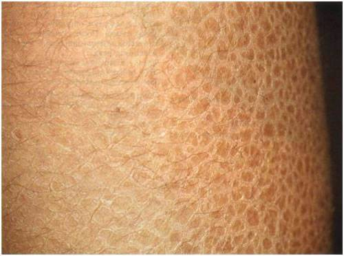 Гиперкератоз плоского эпителия на лице