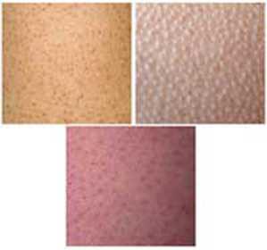 Гиперкератоз кожи лица: лечение, симптомы и причины