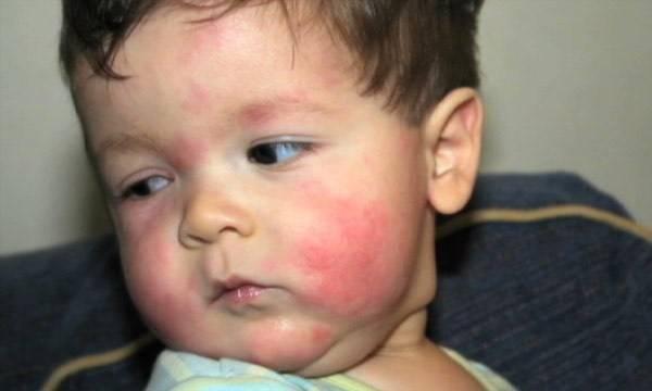 красные пятна на щеках мальчика