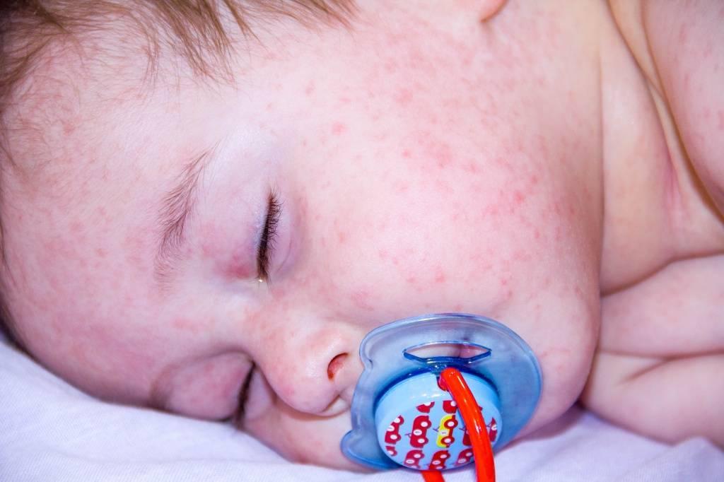 красные пятна на щеках ребенка - как вылечить