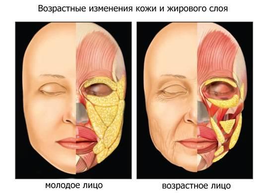Что такое липолитики для похудения, лица, тела в мезотерапии