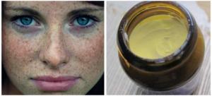 Цинковая мазь при пигментации кожи