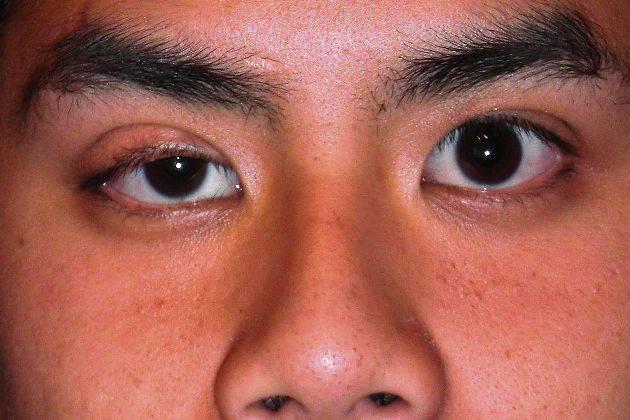 атрофия глазного яблока