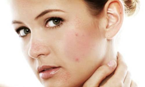 Розовые пятна на лице