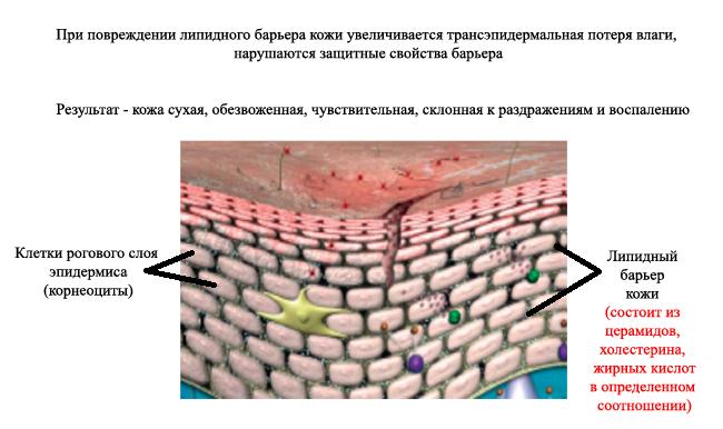 lipids-skin