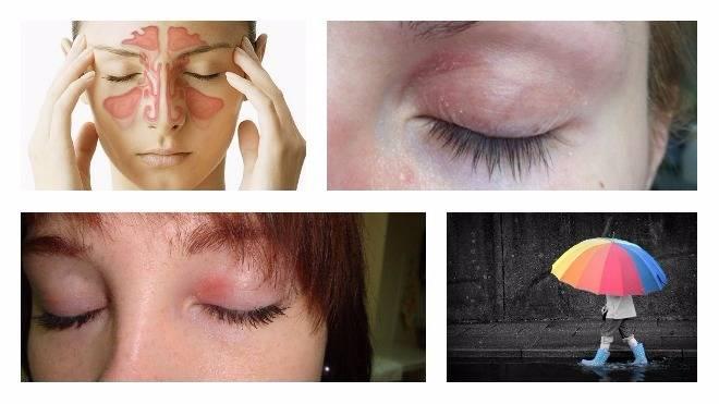 лечение аллергии вокруг глаз