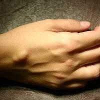 шишка на руке под кожей на запястье