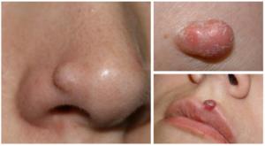фиброма на лице