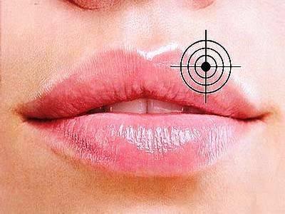 Противовирусные мази - средства от простуды на губах