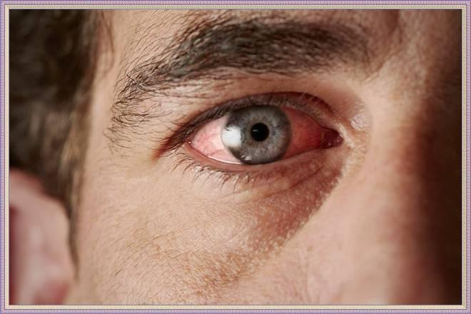 аллергия на веке применяем мазь