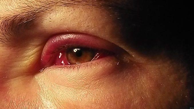 аллергия на лице под глазами