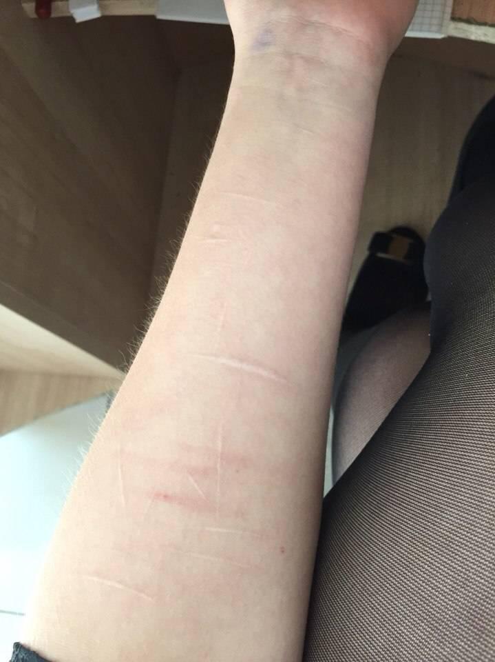 Как убрать шрамы от порезов на руке