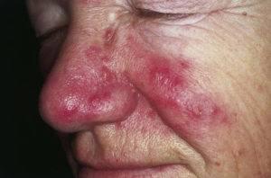 Розацеа на лице – лечение, препараты, крем, причины, симптомы