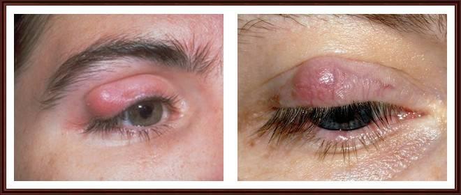 опухоль века глаза лечение чем снять опухоль