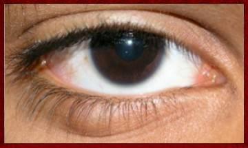 как быстро убрать опухоль под глазом самому