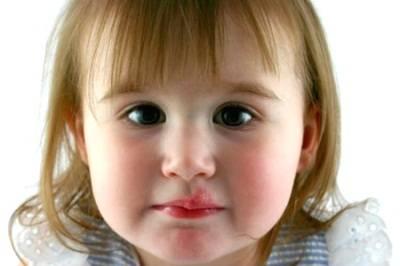 Герпес у ребенка 3 года лечение комаровский