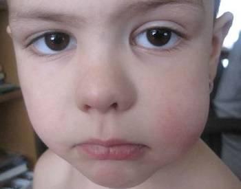 Отек и покраснение щеки ребенка