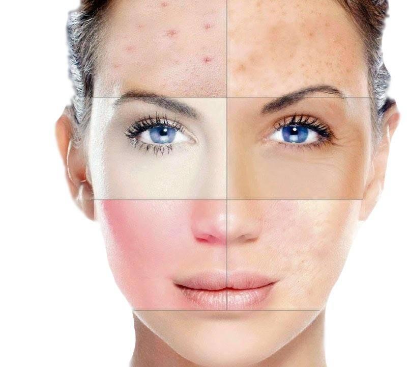 Проблемы с кожей на лице могут проявляться в любой области: на лбу, щеках, под глазами или в зоне подбородка