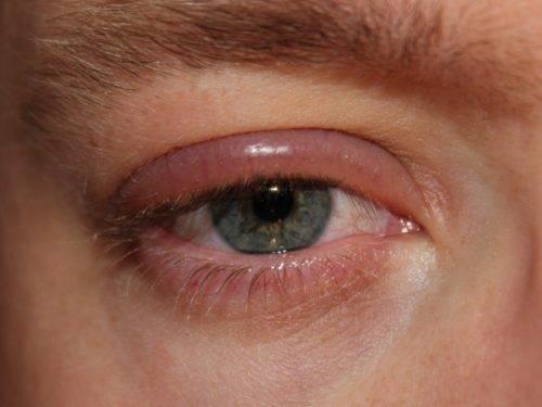 Аллергия под глазами у ребенка
