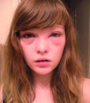 как выглядит аллергия на лице