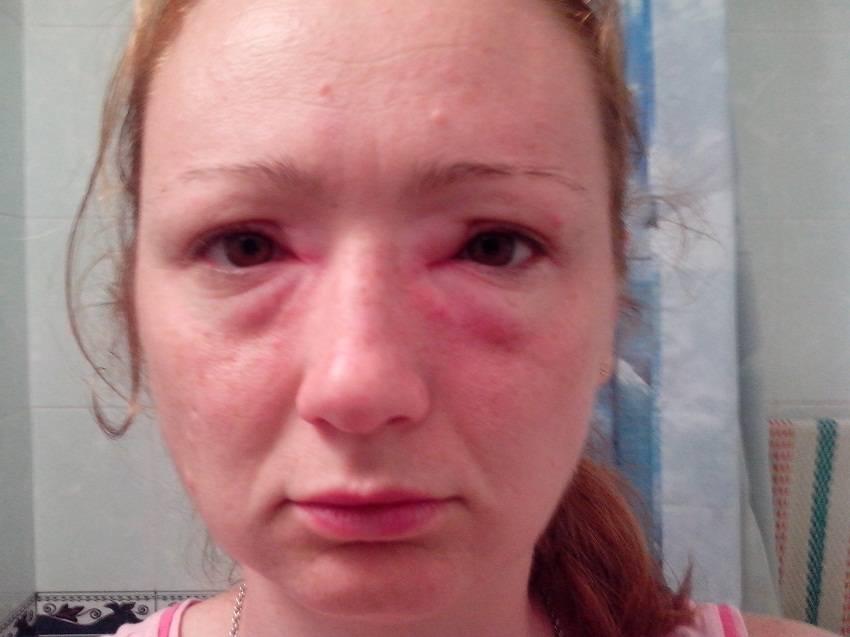 Причиной отечности лица может стать аллергия
