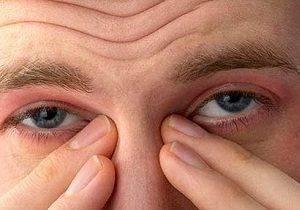 аллергия на веках глаз фото